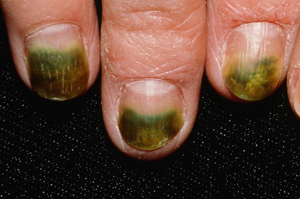 Ногти болезни в картинках