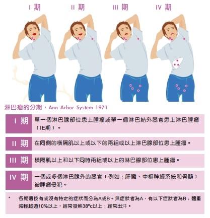 淋巴癌分為4期。(圖片來源:香港防癌會)