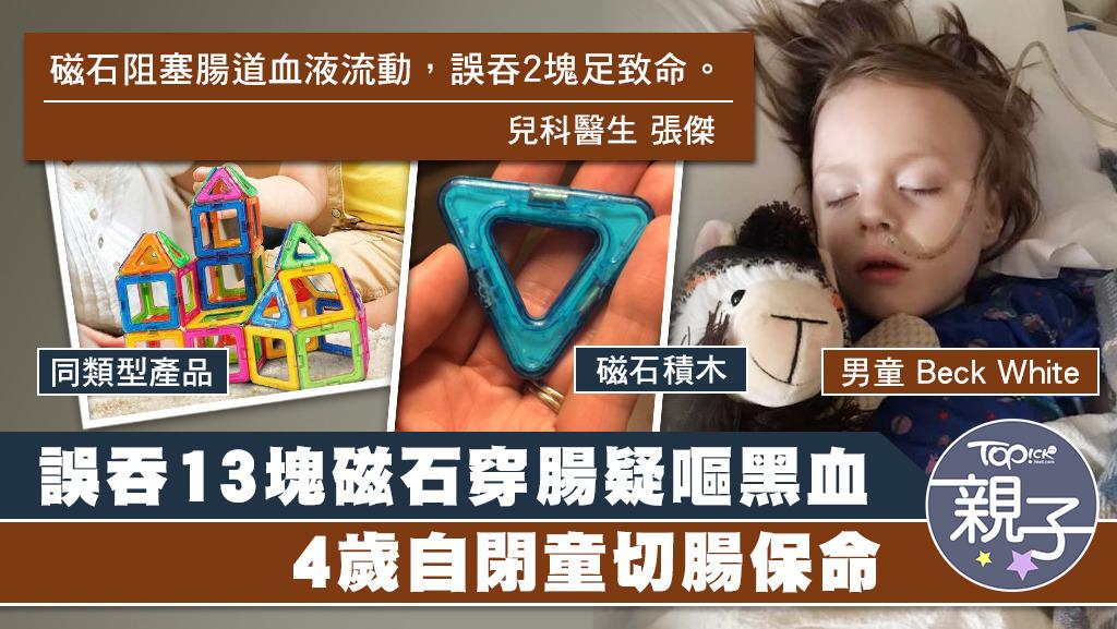 美國一名男童誤吞13塊磁石,令腸道壞死需切除保命。