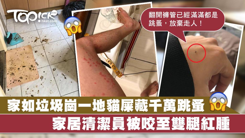 清潔員遇上有幾萬跳蚤的套房,雙腿慘被咬至滿是紅點。