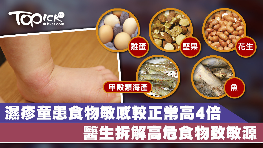 醫生指約有5%的香港兒童有食物敏感,多屬有過敏性體質。