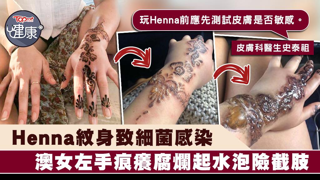 細菌感染 皮膚