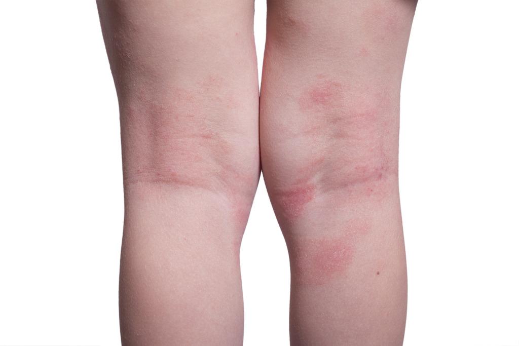 年紀較大的小童,患濕疹時關節內側最受影響,常見如手踭、膝後等都會出現皮炎情況。(iStock圖片)